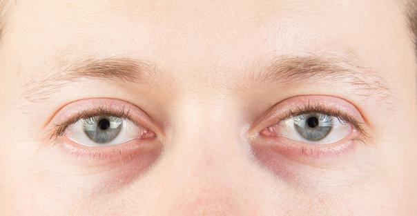 Efectos secundarios de bolsas en los ojos