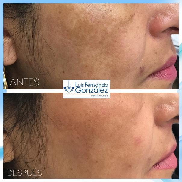 Resultados manchas en la piel