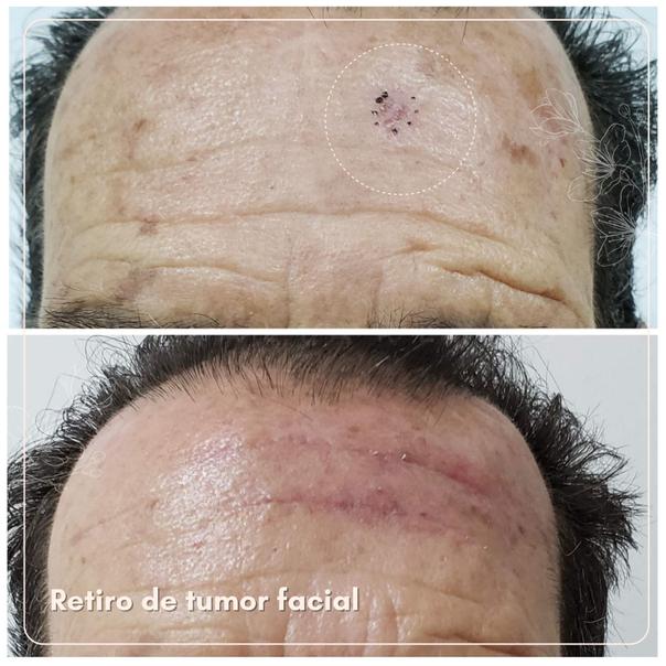 Cirugía maxilofacial.