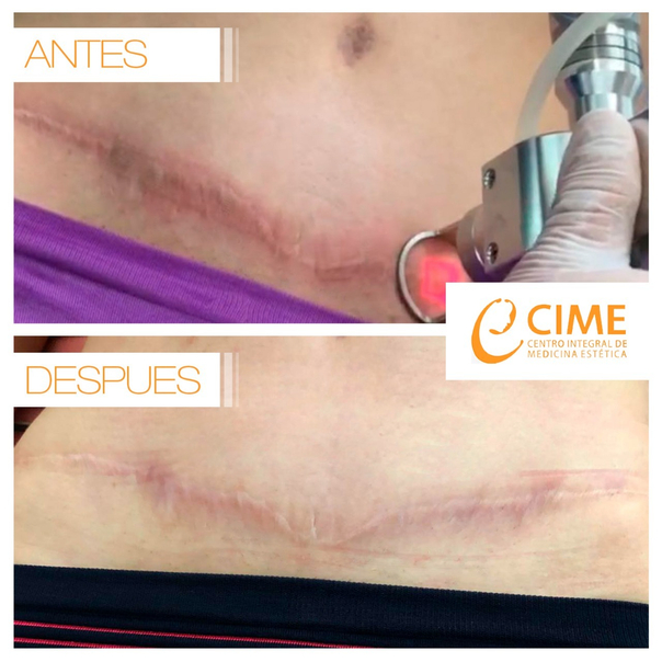 Antes y después de del tratamiento de cicatrices