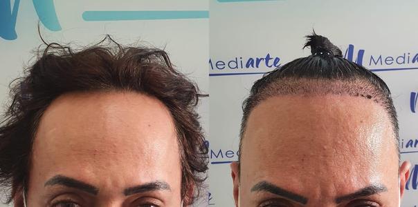 antes y después de implante de cabello