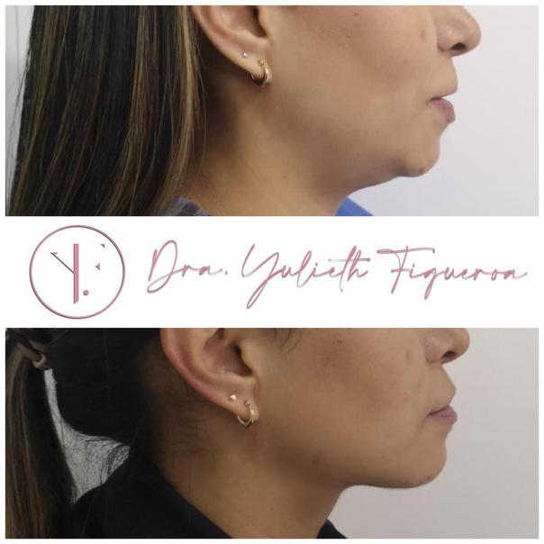 Mujer antes y después de su cirugía de papada