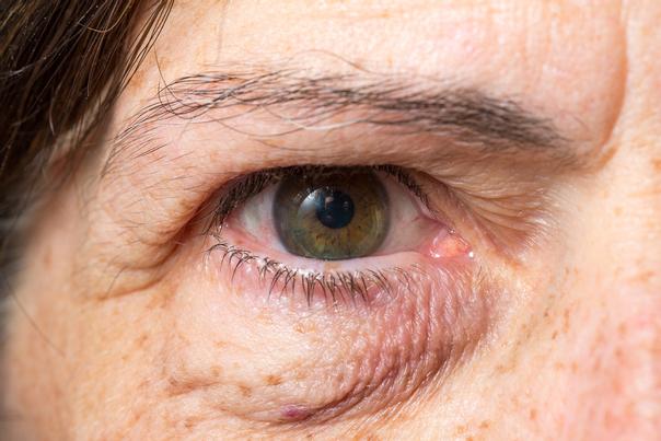 resultados tratamiento ojeras