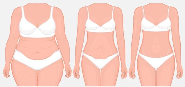 Tipos de abdominoplastia