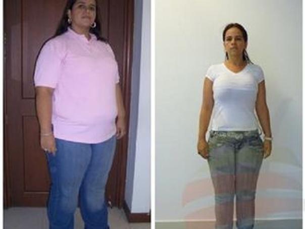 antes y después bypass gástrico