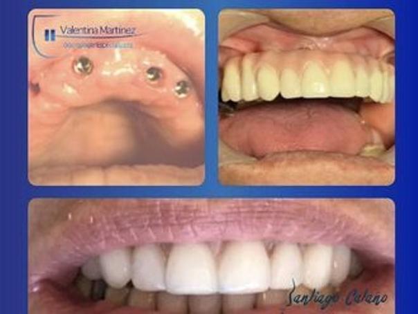 antes y después implantes