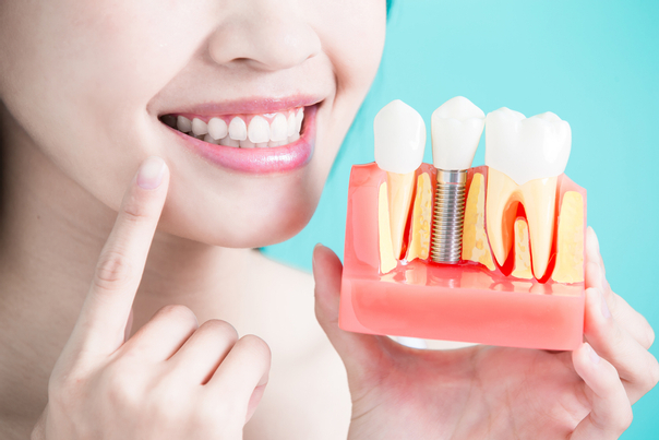 ventajas de la ortodoncia.