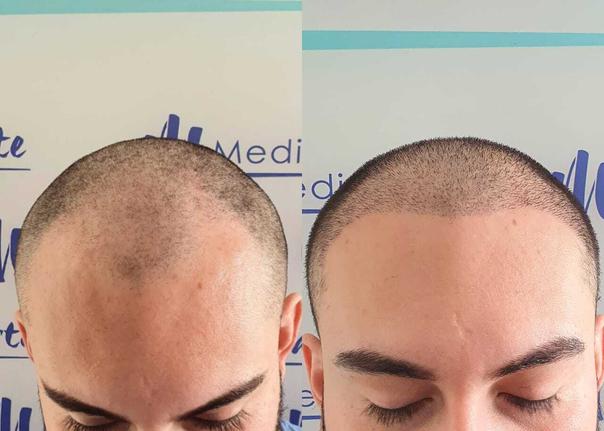 antes y después de implante capilar