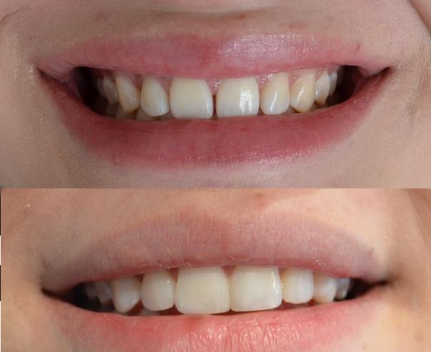 diseño de sonrisa con ortodoncia