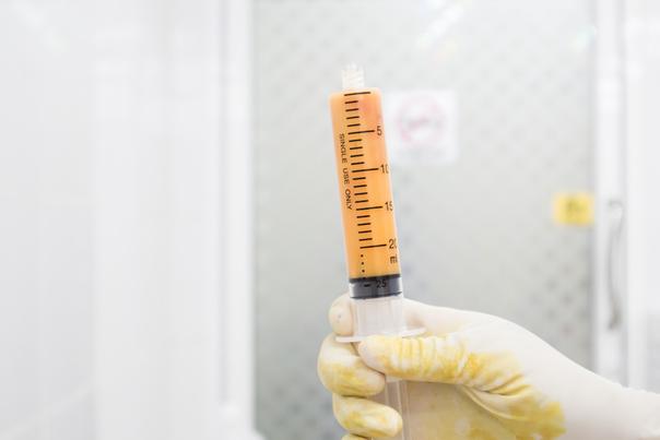 Otras técnicas de mentoplastia