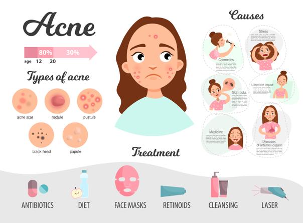 Recomendaciones para evitar acné