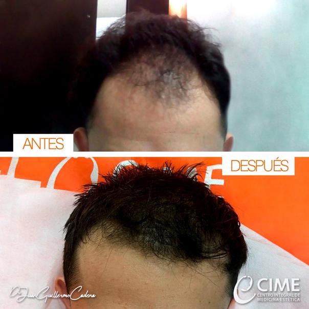 Antes y después trasplante de cabello
