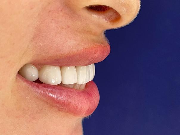 diseño de sonrisa en mujeres