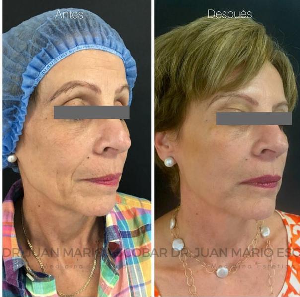 antes y después de rejuvenecimiento facial