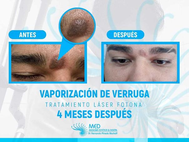 cicatriz eliminación de verrugas