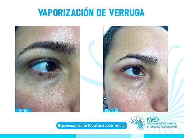 antes y después de eliminación de verrugas