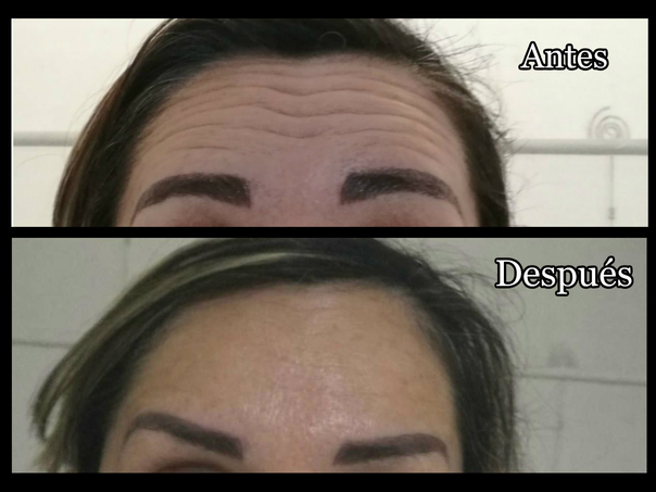antes y después bótox
