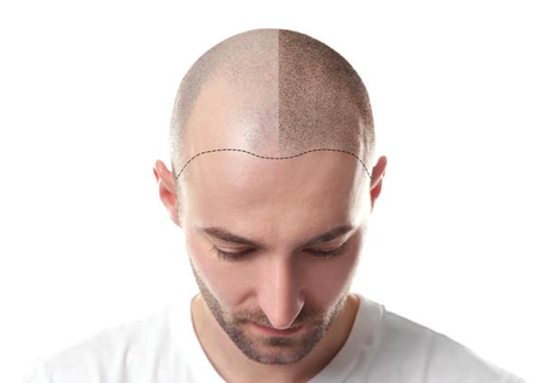 recuperación tratamiento para el cabello