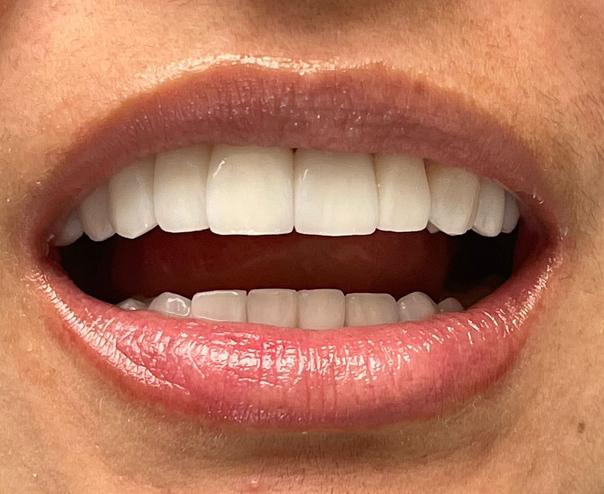 diseño de sonrisa en Colombia
