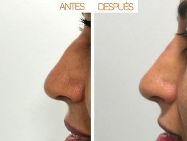 rinomodelacion antes y después