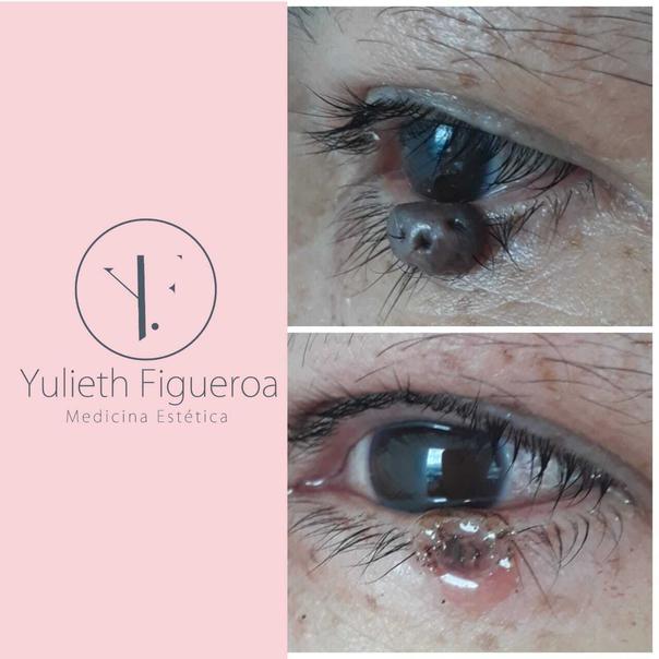 Resultados eliminación de verrugas