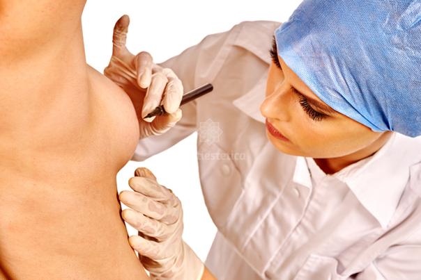 reconstrucción mamaria procedimiento