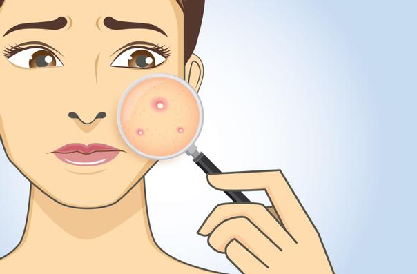 Tratamiento contra el acné
