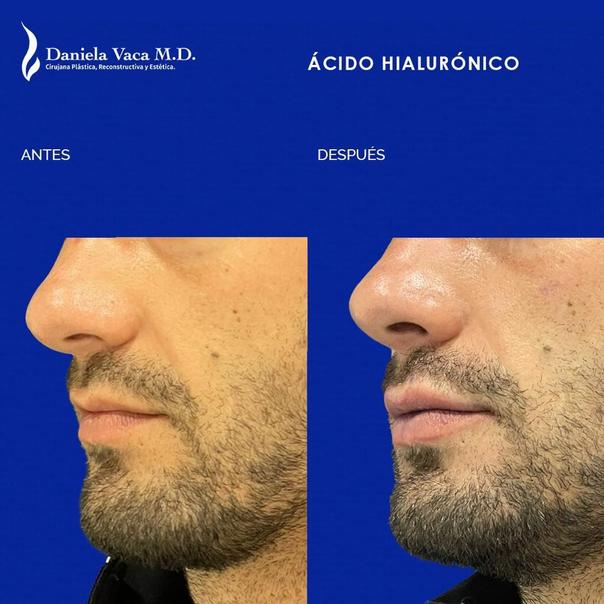 Antes y después aumento labios