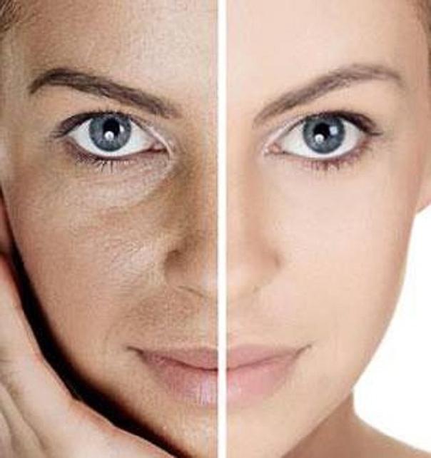 Tratamientos para las manchas de la piel