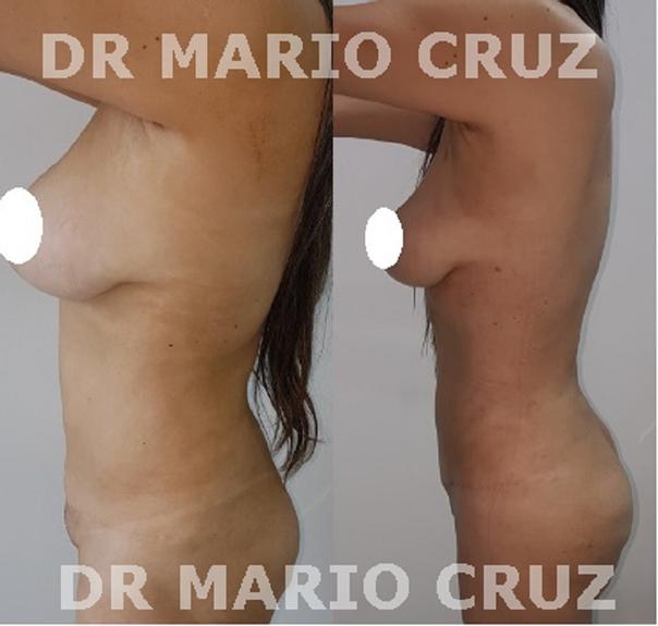 Antes y después de lipoescultura