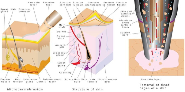 La microdermoabrasión