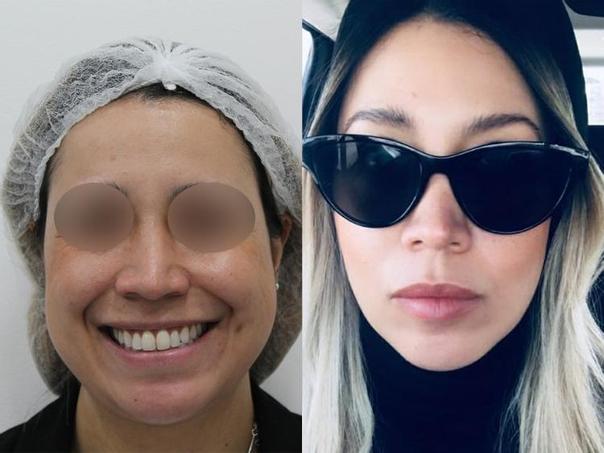 antes y después bolsas bichat