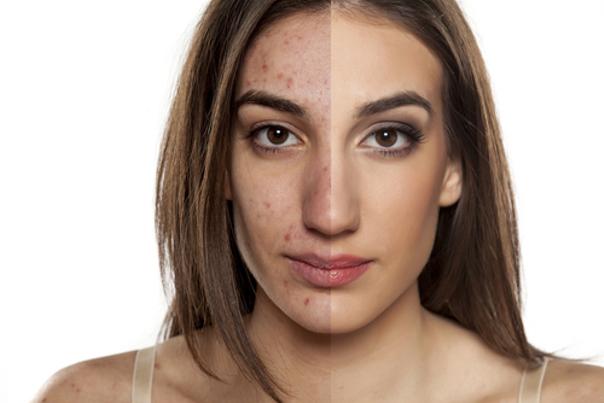 Quien puede sufrir acné