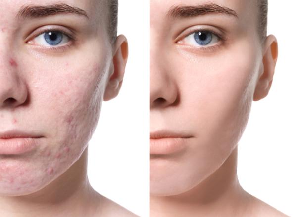 Resultados de tratamiento de cicatriz