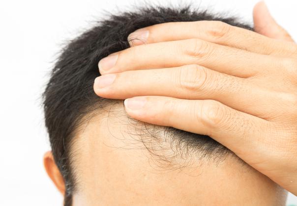Alopecia y estrés