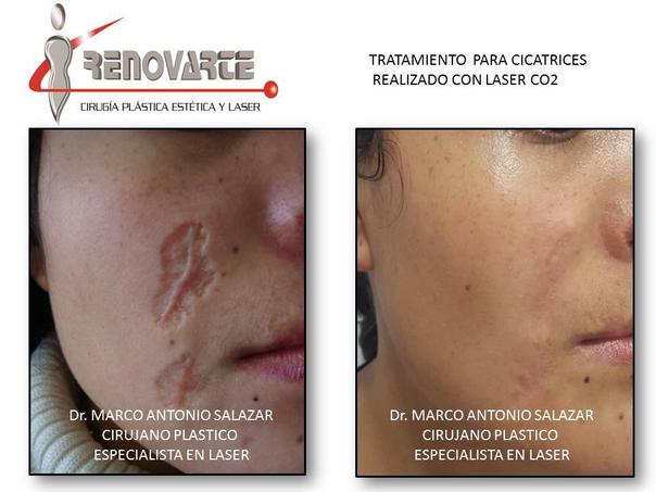 Antes y después de el tratamiento de cicatriz