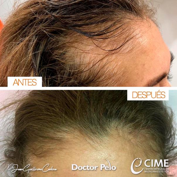 antes y despues de implante de cabello