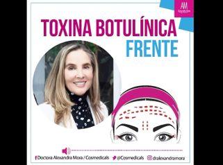 Bótox en la frente - Doctora Alexandra Mora