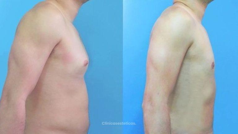 Ginecomastia Extirpación Liposucción Mamas Masculinas