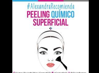 Peeling químico superficial