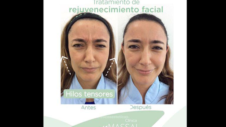 Rejuvenecimiento facial - Massai Clínica