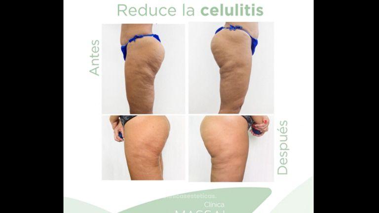 Celulitis - Massai Clínica