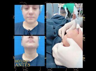 Liposucción de papada - Dr. Jaime Pachón