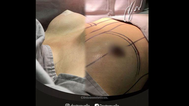 Mamoplastia de aumento - Dr Jorge Puello White
