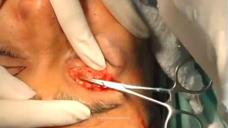 Procedimiento blefaroplastia