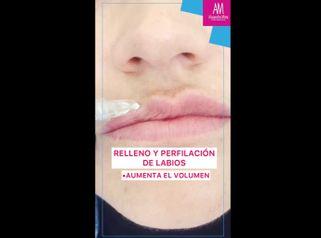 Aumento de labios - Doctora Alexandra Mora