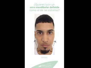 Tratamiento arco mandibular - Massai Clínica