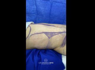 Lipoescultura - Dr. Luis Fernando Reyes