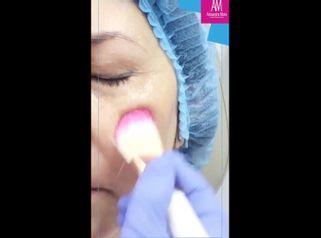 Manchas en la piel - Doctora Alexandra Mora