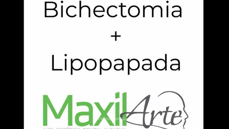 Bichectomía + Lipopapada